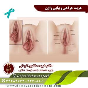 هزینه-جراحی-زیبایی-واژن-در-سال-98ص